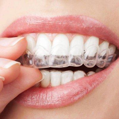 Ortodonzia - tecnica invisailing
